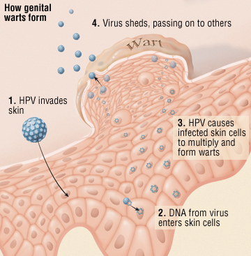 genital warts and cancer woman
