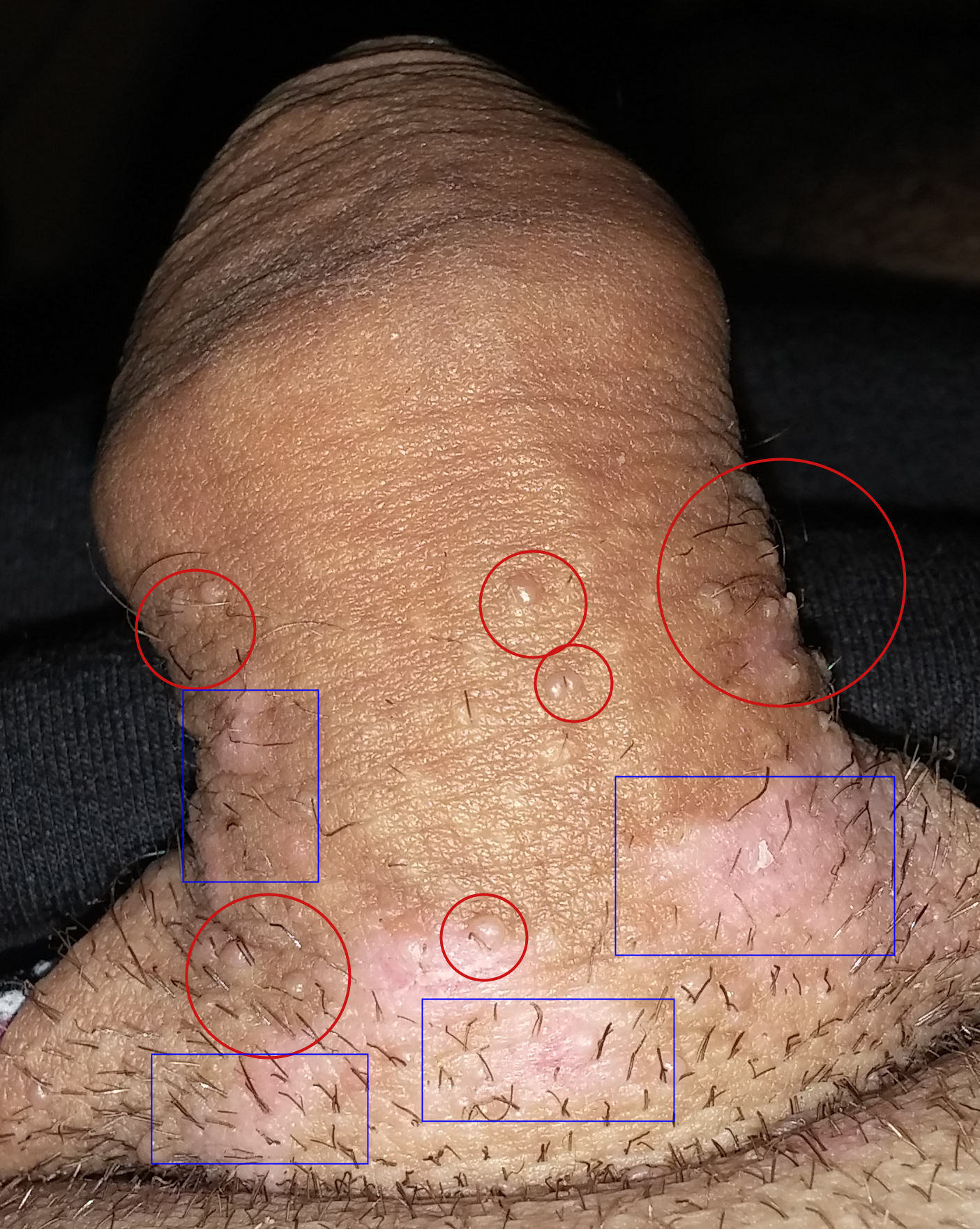 hpv high risk positive and normal pap