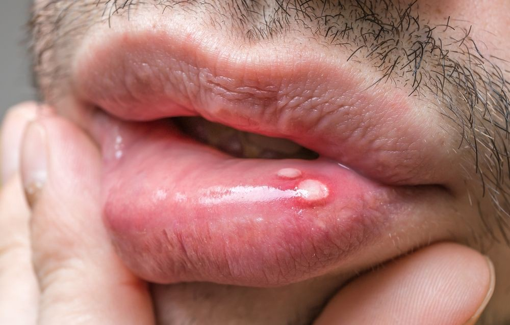 mouth warts look)