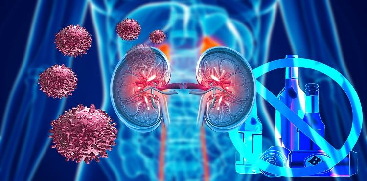 cancer renal quimioterapia)