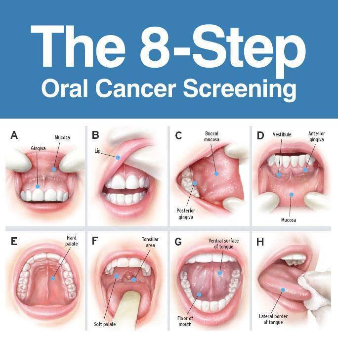 oropharyngeal cancer hpv