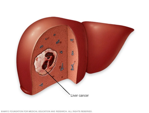hepatic cancer what is it