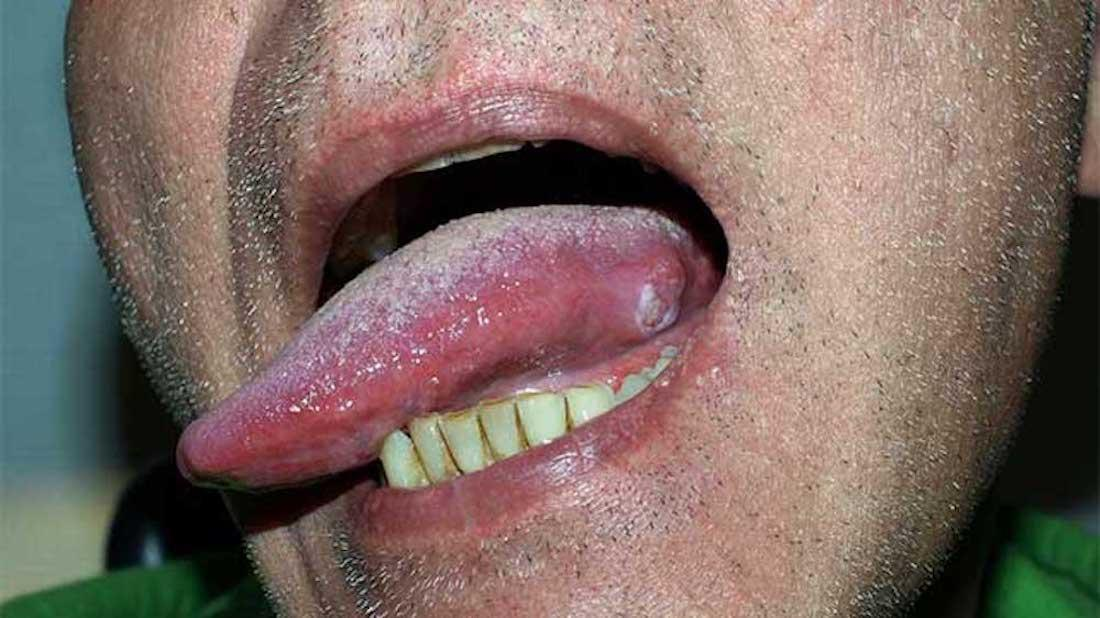hpv squamous cell carcinoma tongue hpv virus in throat cancer
