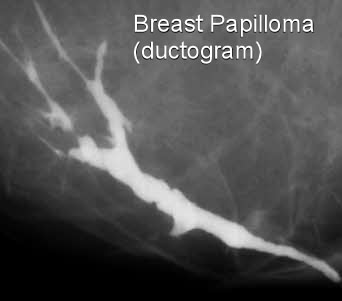 intraductal papilloma left untreated