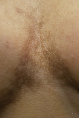 confluent and reticulated papillomatosis in pregnancy)