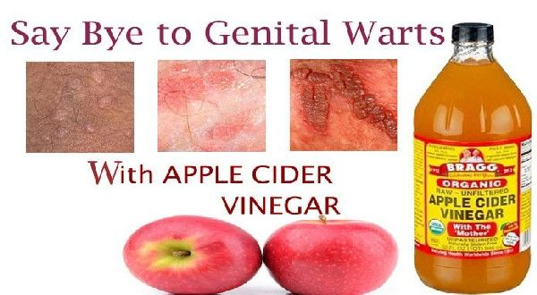 hpv warts removal)