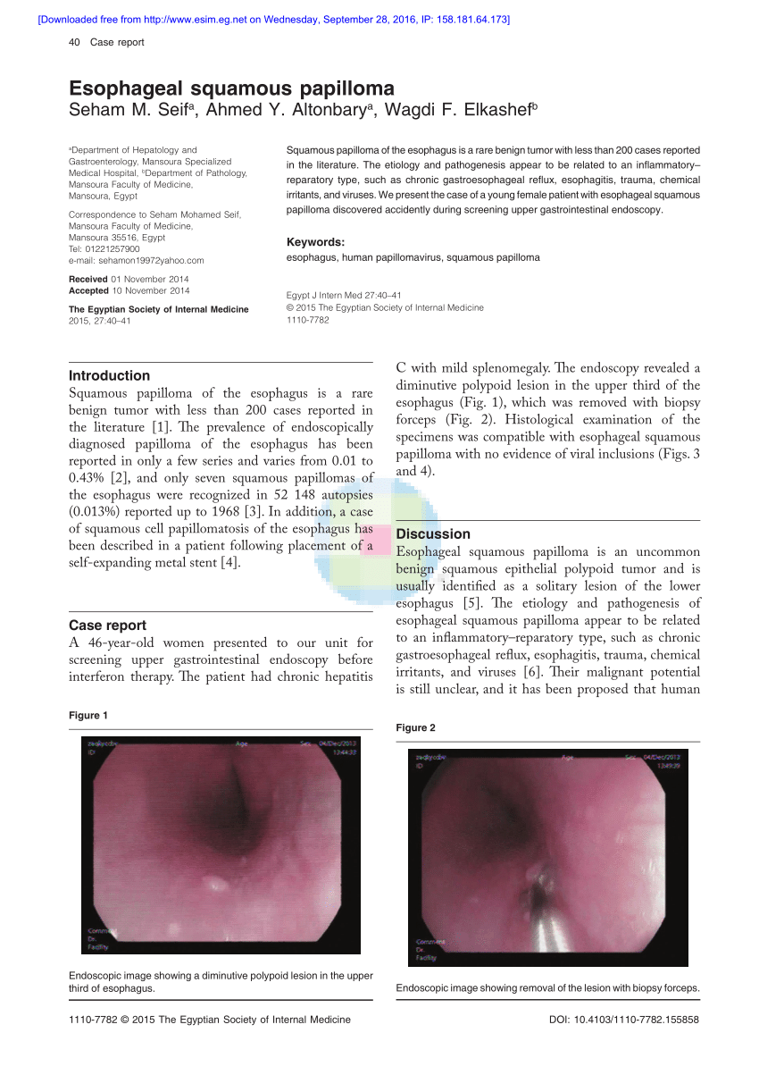 esophageal squamous cell papilloma