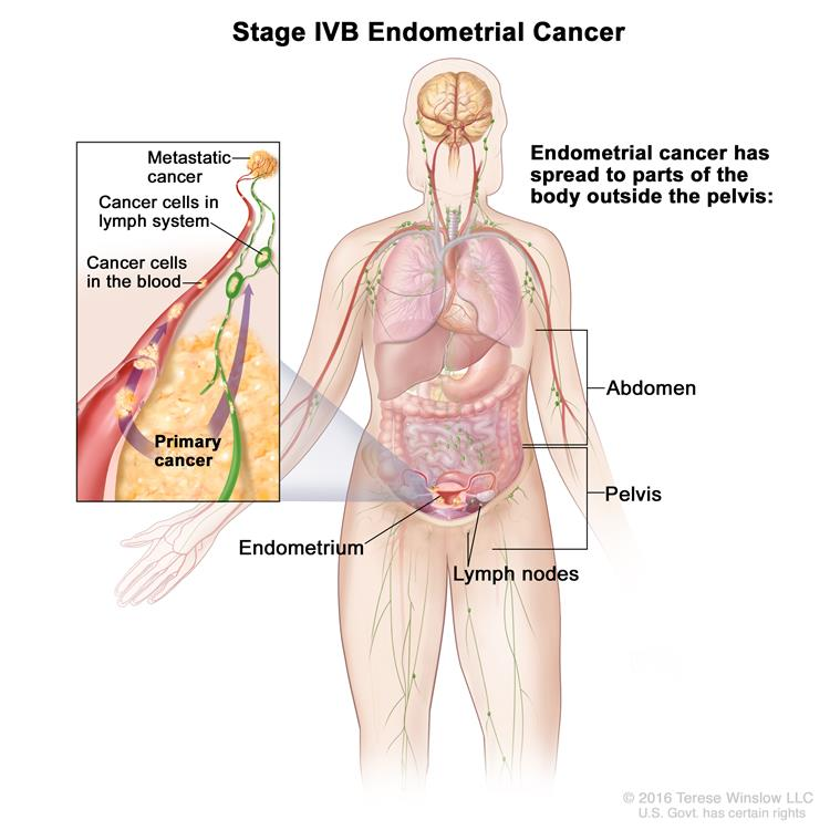 uterine cancer how fast does it spread