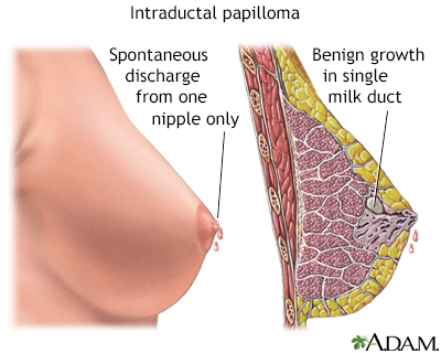 intraductal papilloma surgery cost
