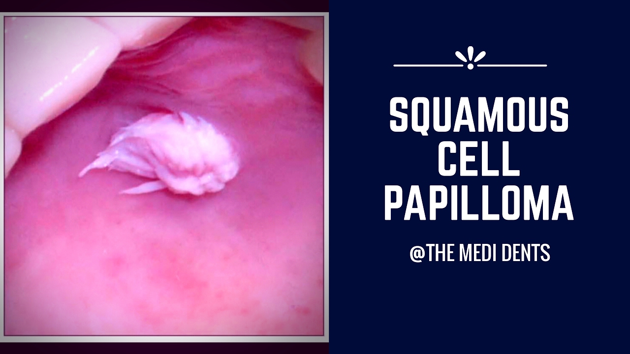 papilloma meaning in tamil)
