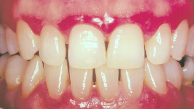 mouth warts on gums)