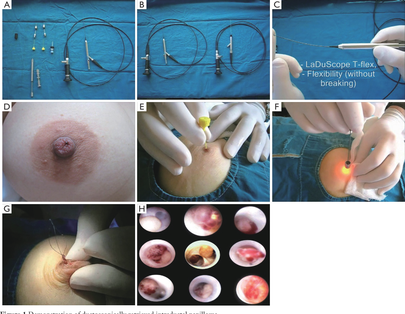 intraductal papilloma green discharge