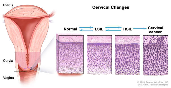 precancerous cells due to hpv)