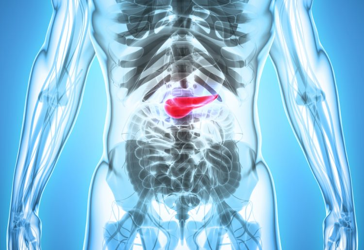 peritoneal cancer lower back pain
