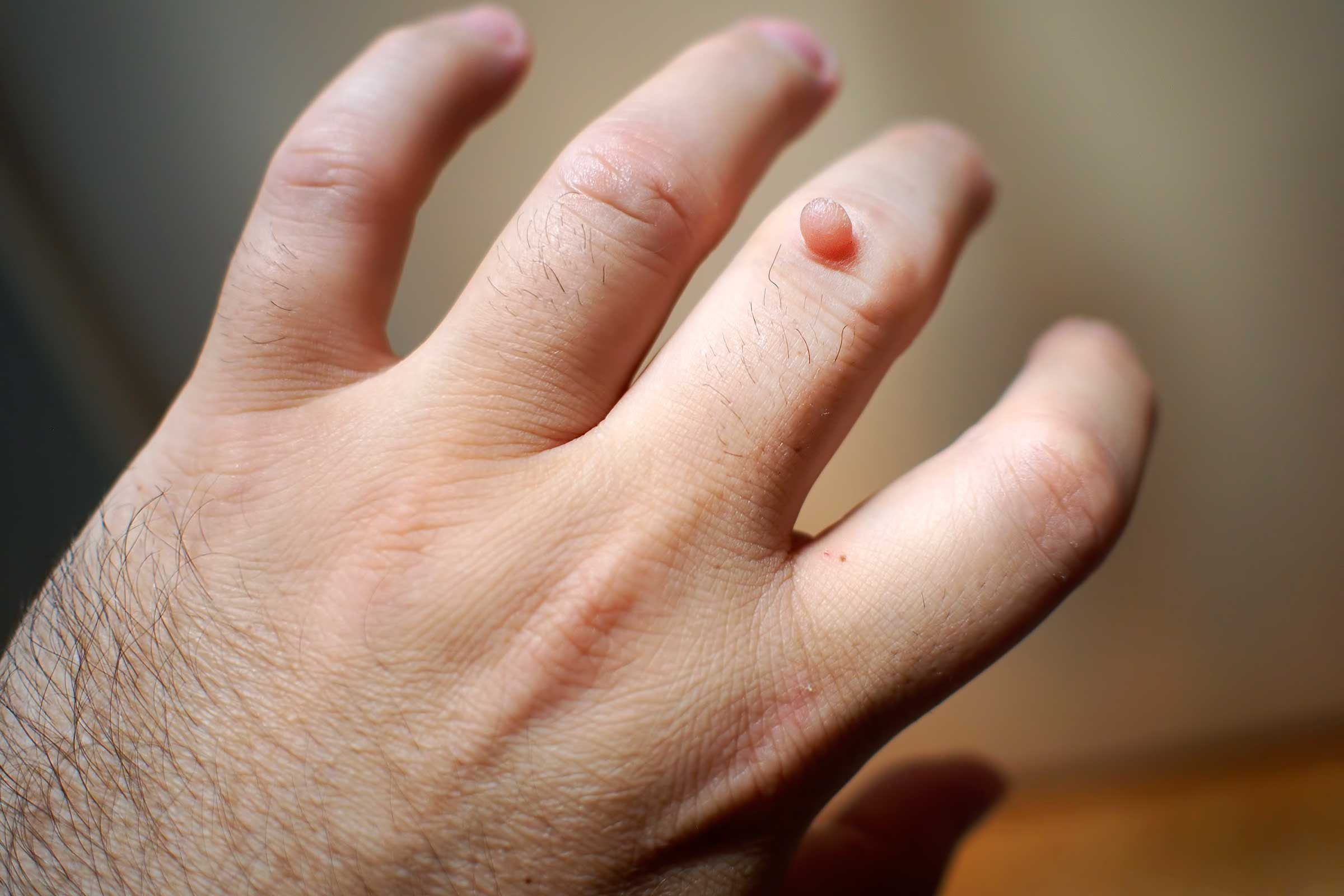 warts on hands keep coming back