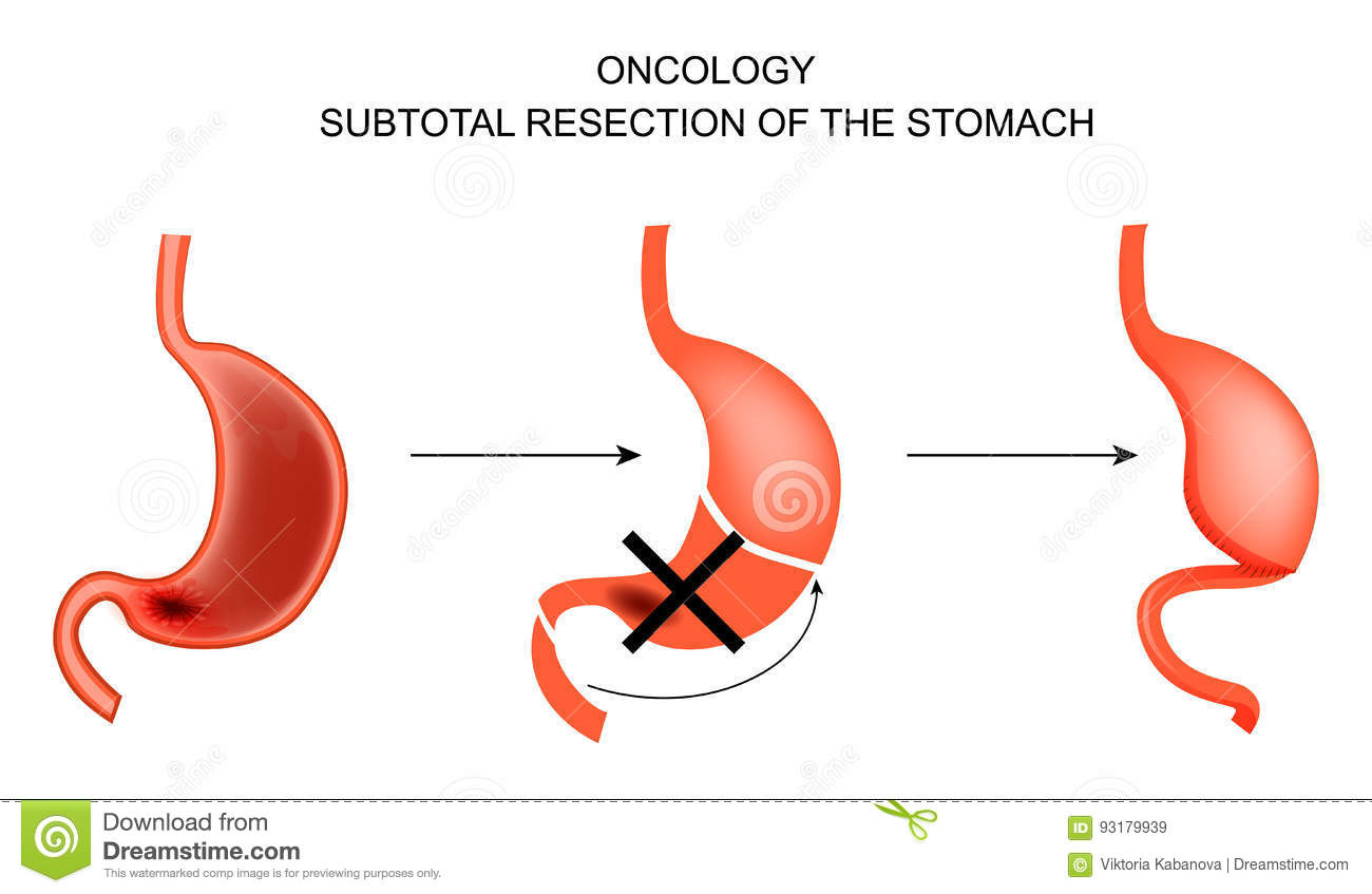gastric cancer resection tratament dezintoxicare