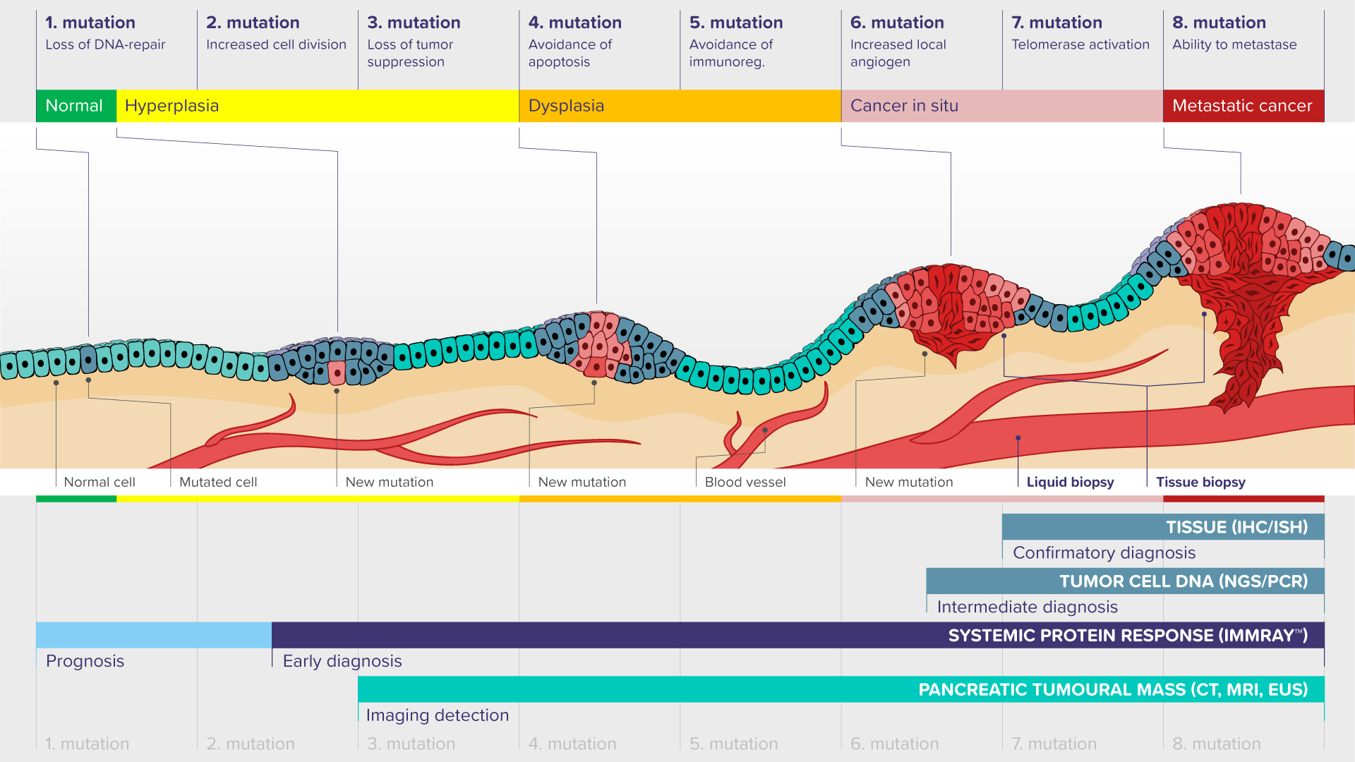 pancreatic cancer detection