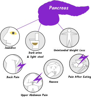 pancreatic cancer first symptoms were)