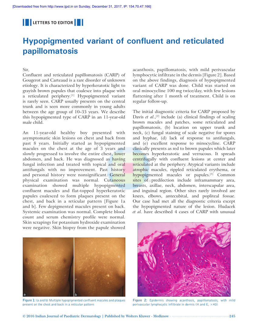 confluent and reticulated papillomatosis derm net)