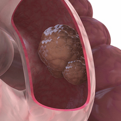 inoperable colon cancer)