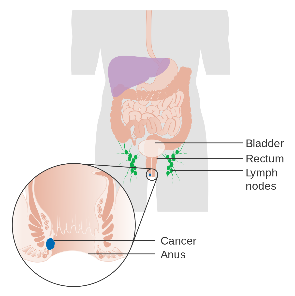 metastatic cancer buttock pain