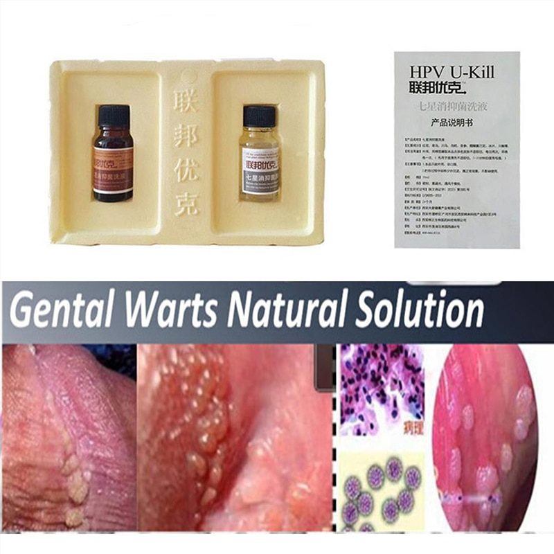 hpv penile wart removal