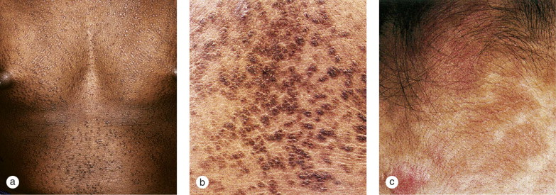 confluent and reticulated papillomatosis age of onset)