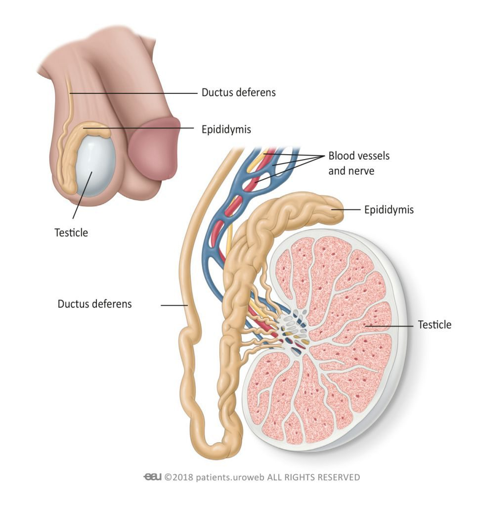 testicular cancer what is it