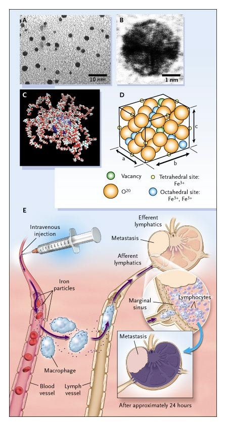 metastatic cancer and lymph nodes