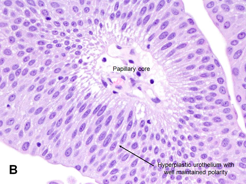 papillary urothelial proliferation of uncertain malignant potential)