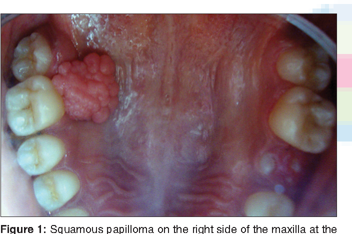 squamous papilloma in mouth)