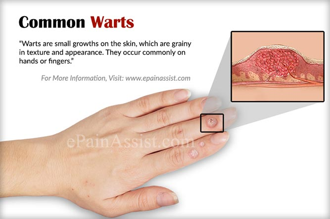 warts on hands treatment at home