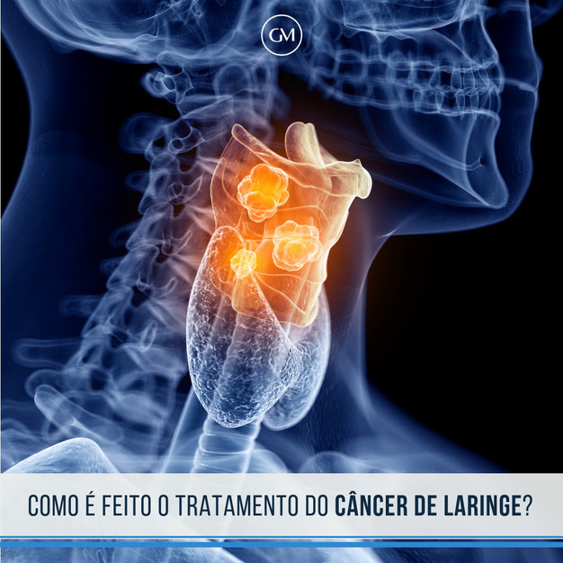 cancer de intellicig.ro