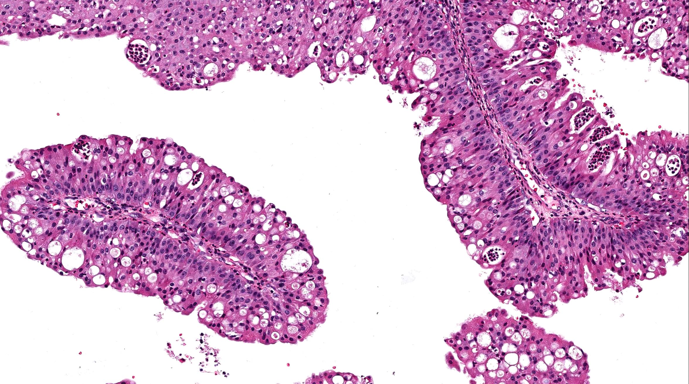 inverted papilloma of nose histology)
