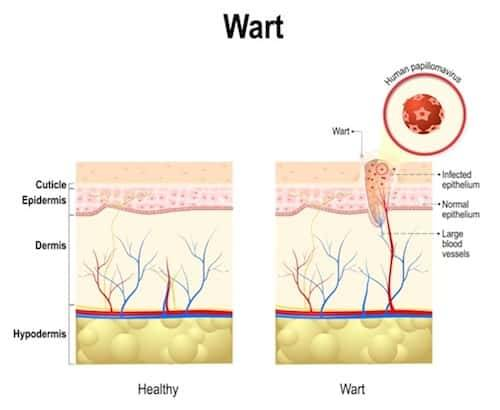 warts removal home remedy in tamil