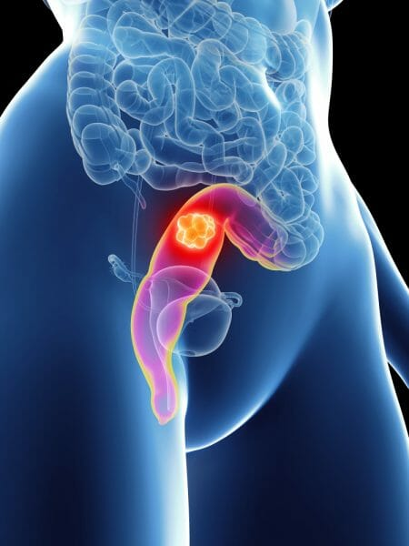 rectal cancer of dezintoxicare cluj