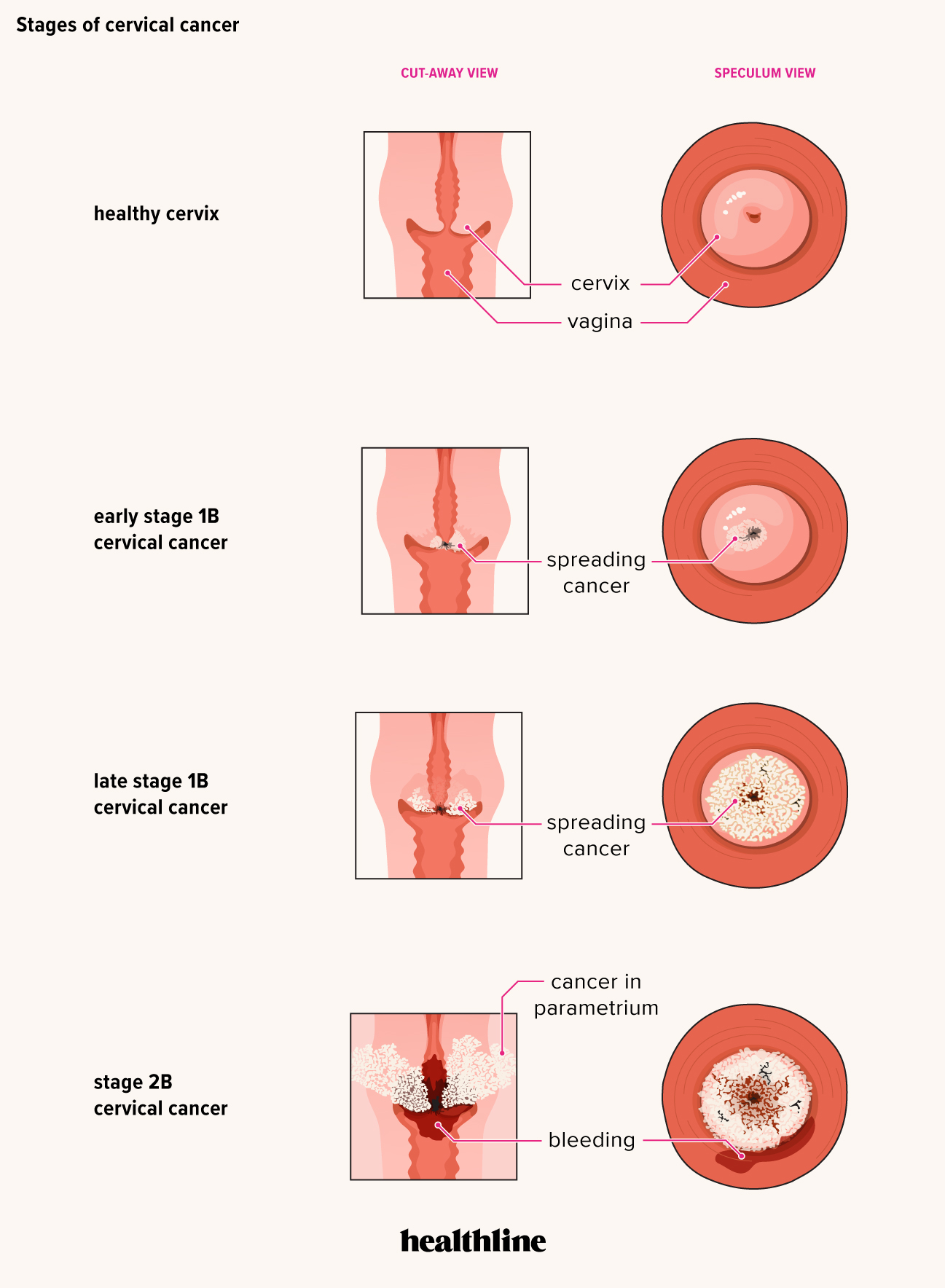 can hpv cervical cancer spread