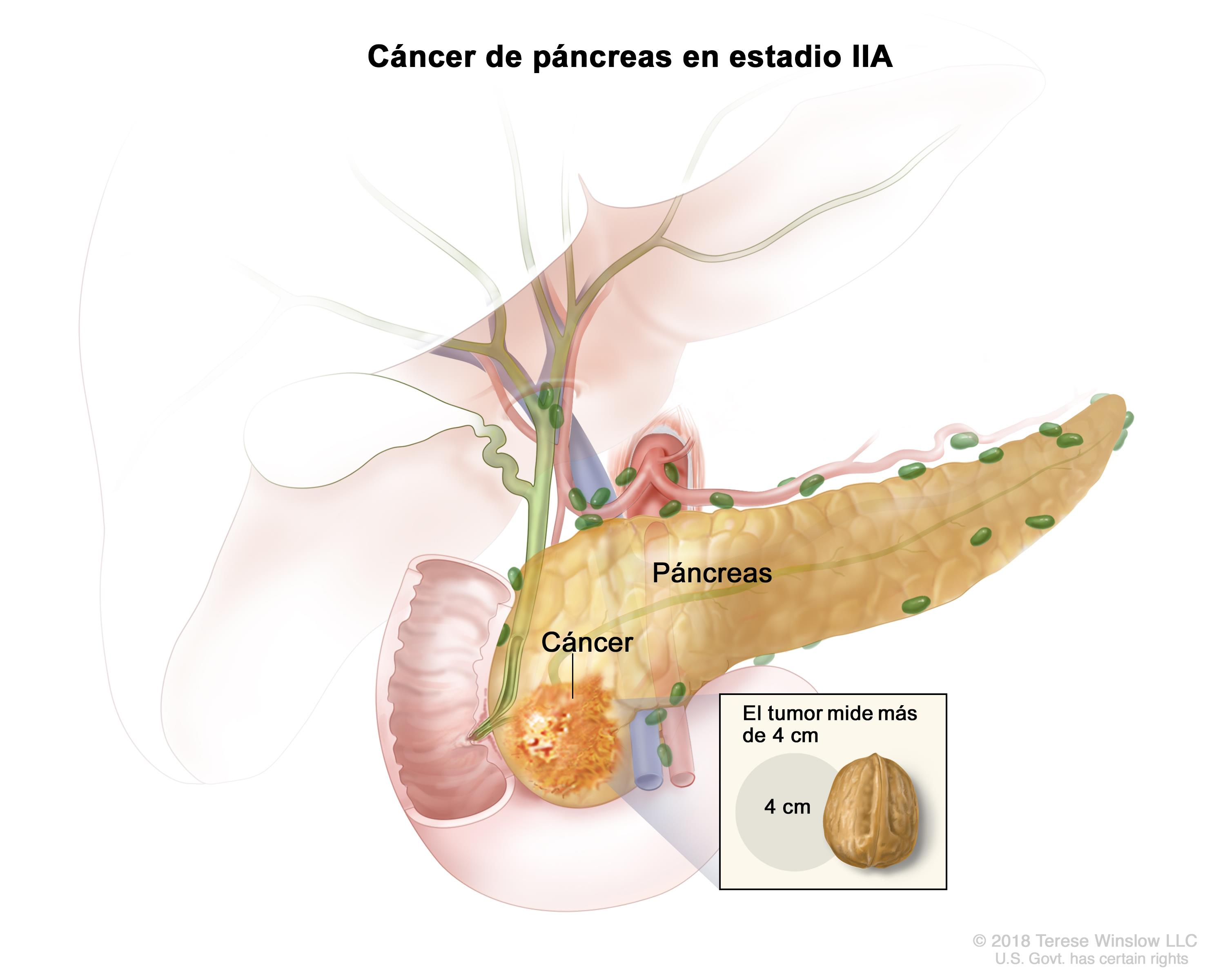 cancer de pancreas curado)