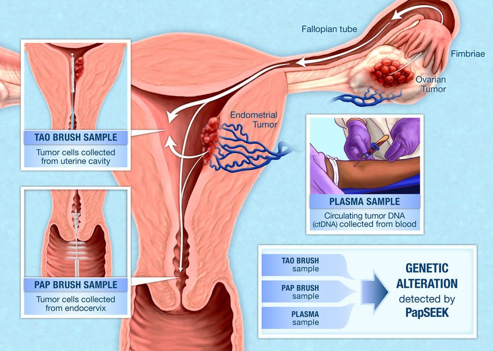 cancer ovarian detection