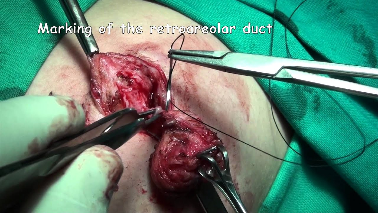 intraductal papilloma removal procedure