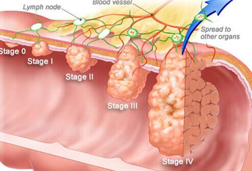 colorectal cancer blood in stool peritoneal cancer genetic