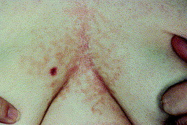 confluent and reticulated papillomatosis during pregnancy parazitii cotton