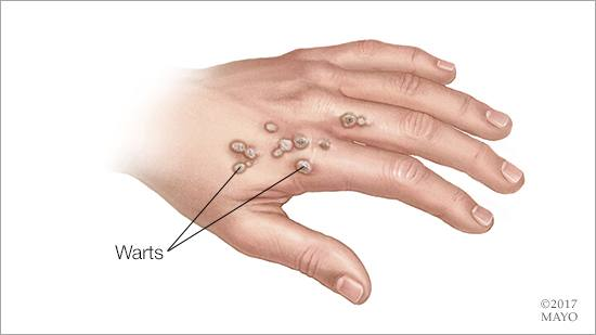 cure warts hand)