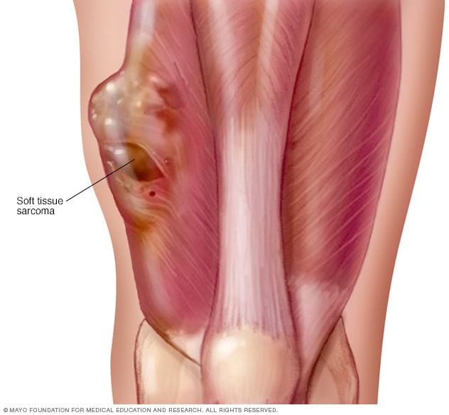 sarcoma cancer of the soft tissue