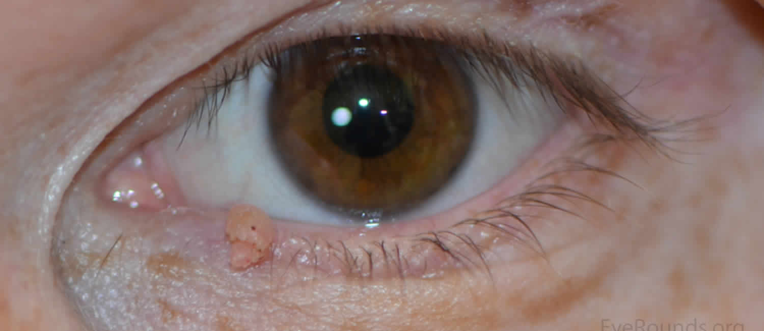 papilloma of the eyelid