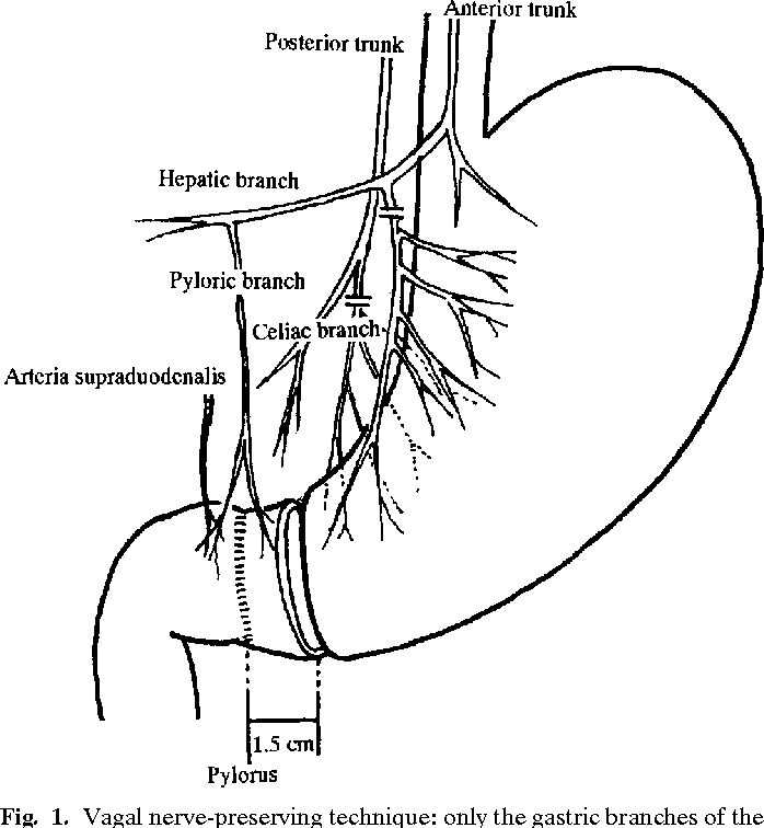 gastric cancer vagus nerve