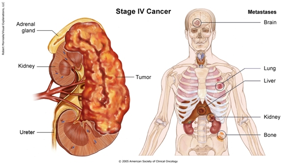renal cancer labs