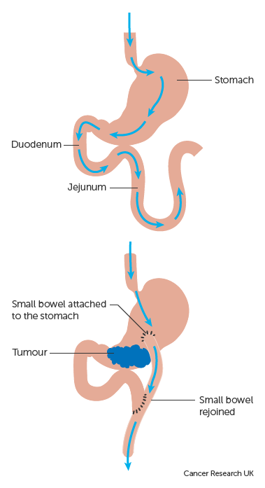 gastric cancer resection