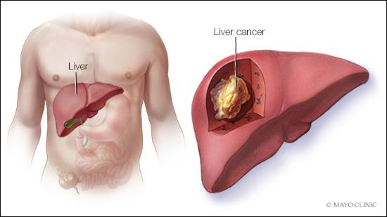 hepatocellular cancer patients hpv hair removal