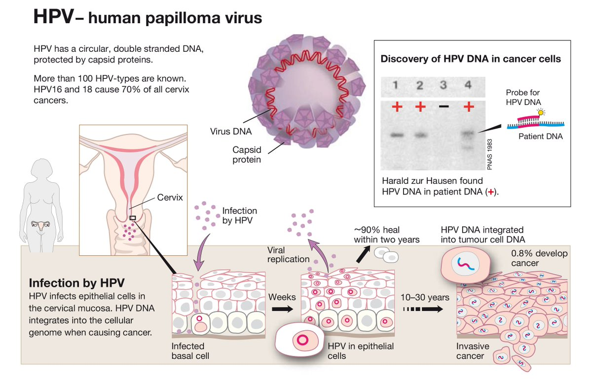 hpv cervical cancer nobel prize)